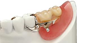 健康な歯への負担が少ない入れ歯