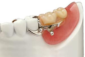 入れ歯 奥歯 部分 入れ歯は何歳から?部分入れ歯・総入れ歯のメリットとリスク [歯・口の病気]